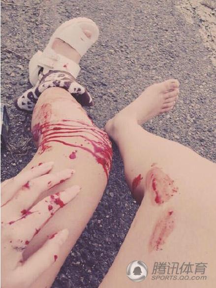 99自拍_港嫩妹飚车倒地淡定玩手机 事故现场不忘自拍