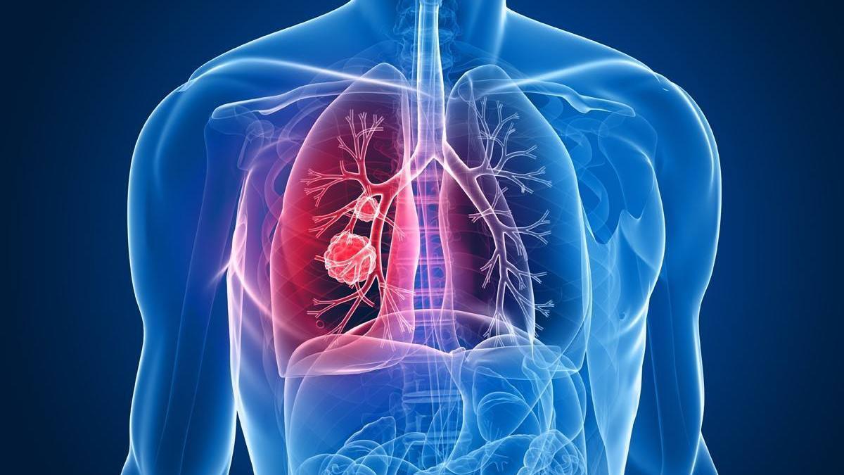 数字赋能肺癌早诊 可有效提高肺癌患者存活率