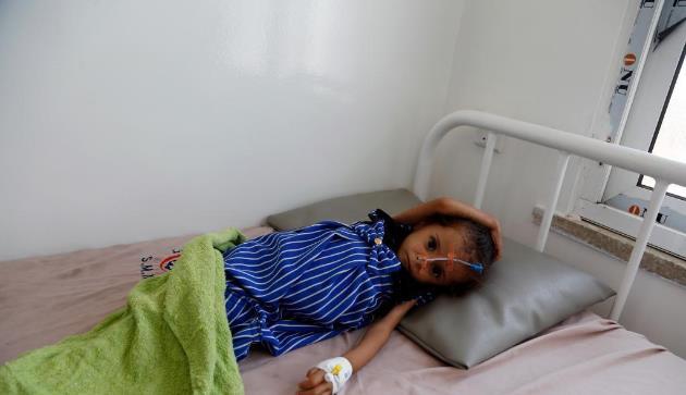 也门:营养不良的儿童